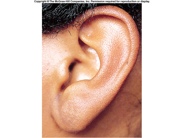Image Result For Attached And Detached Earlobes